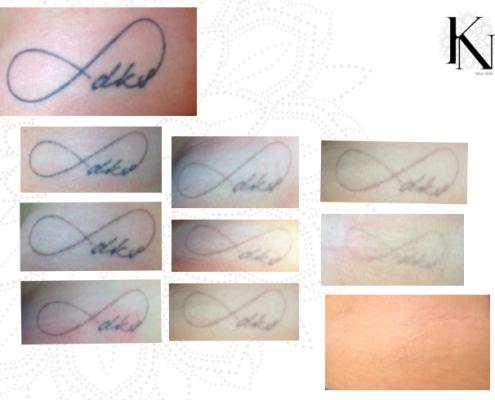 Verlauf einer Tattooentfernung